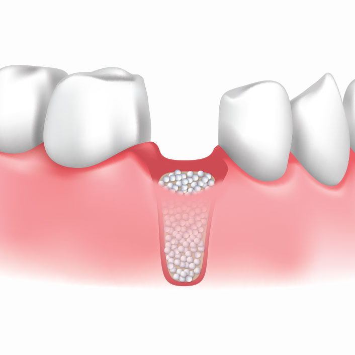 Bone Grafting - Dental Services