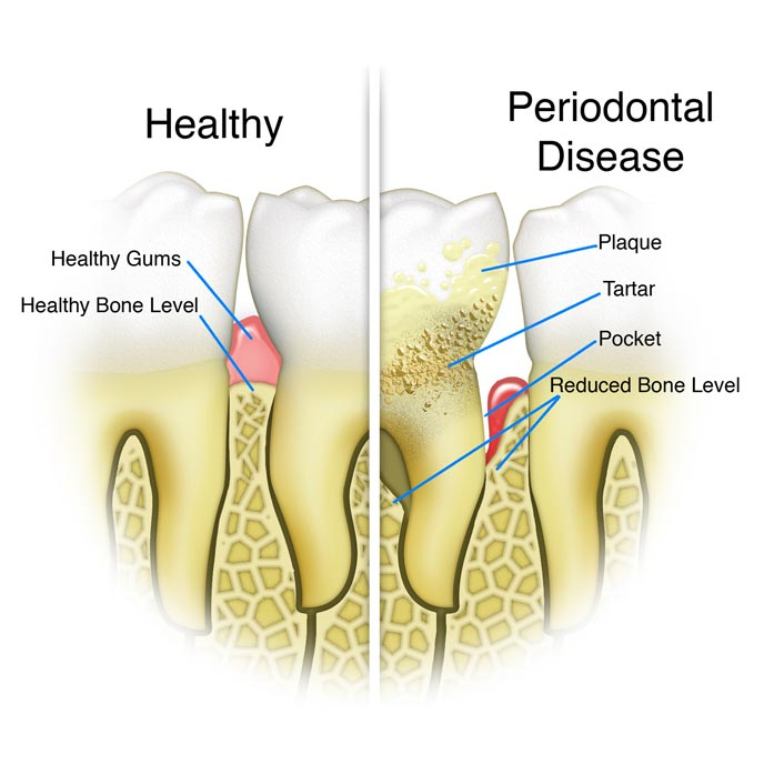 Periodontal Treatment - Dental Services