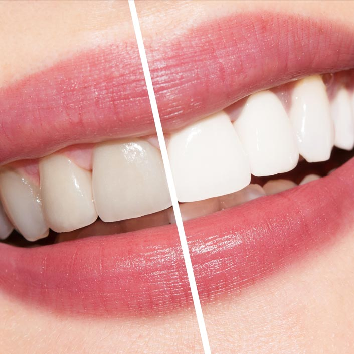 Zoom! Whitening - Dental Services